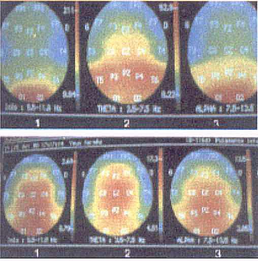 brain - Hipnose & Sintetizador de Ondas Cerebrais  -  Pesquisas